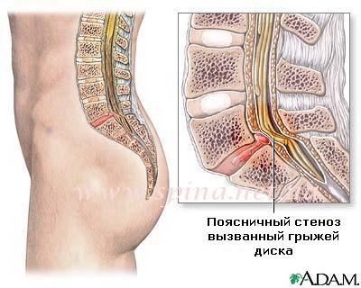 Стандарты лечения остеохондроза позвоночника предусматривают снятие спазма мышц спины и шеи при помощи