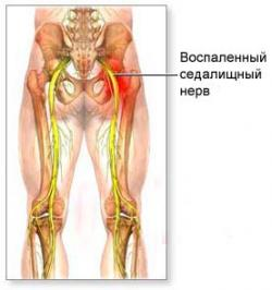 Физиолечение при артрозе коленного