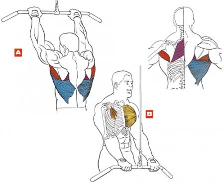 Как лечить остеохондроз: физические упражнения и народные