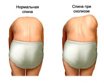 как лучше всего убрать жир с живота