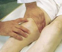 Как лечить артрит суставов народными средствами